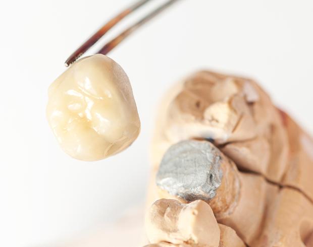 Dental Zirconia Crowns