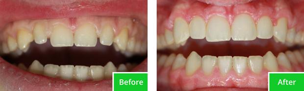 Enamel Tooth Bonding