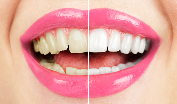 Harrogate Dentist Tooth Whitening